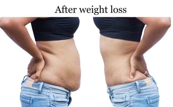 Benefits of HCG drops for weight loss