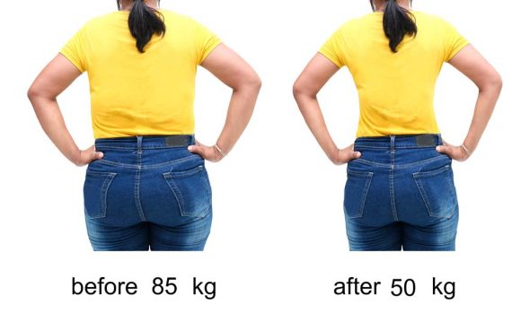 Dr Emma`s hCG diet protocol result