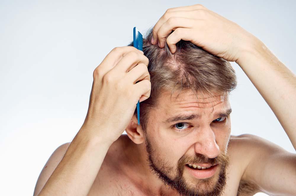 HCG Diet hair.